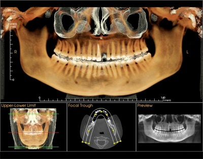 Odontología digital | DentalInfo