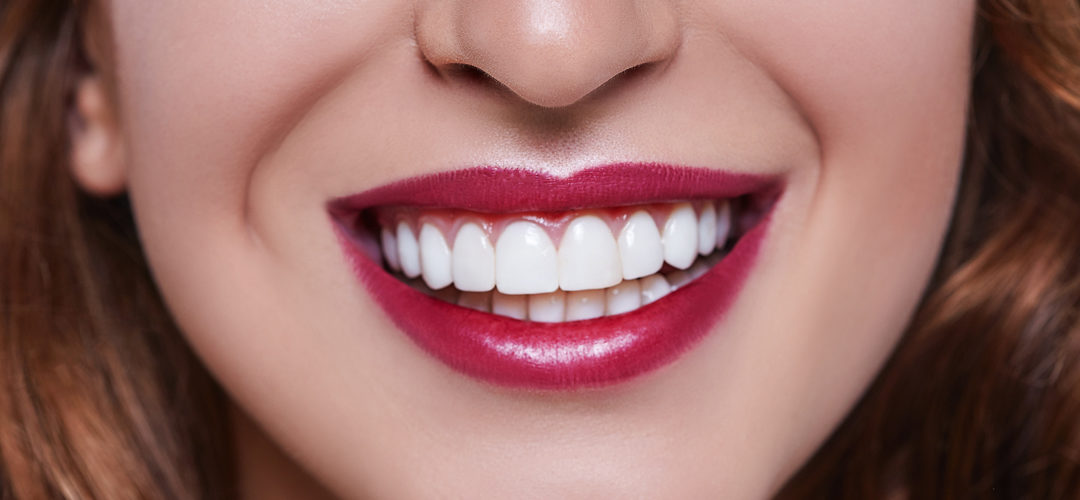 Carillas dentales | Dentalinfo